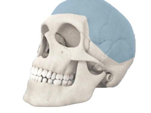 Craniomaxilofacial